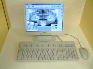 デジタルレントゲン